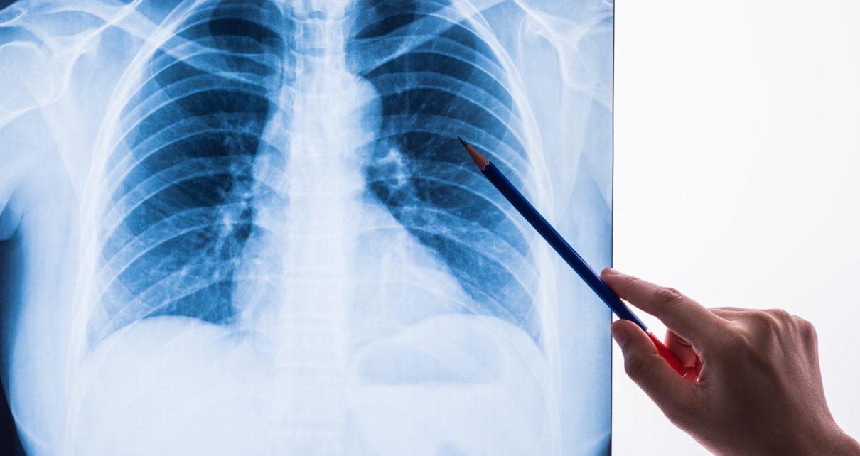 Światowy Dzień Zapalenia Płuc – 12 tys. zgonów rocznie w Polsce z powodu tej choroby